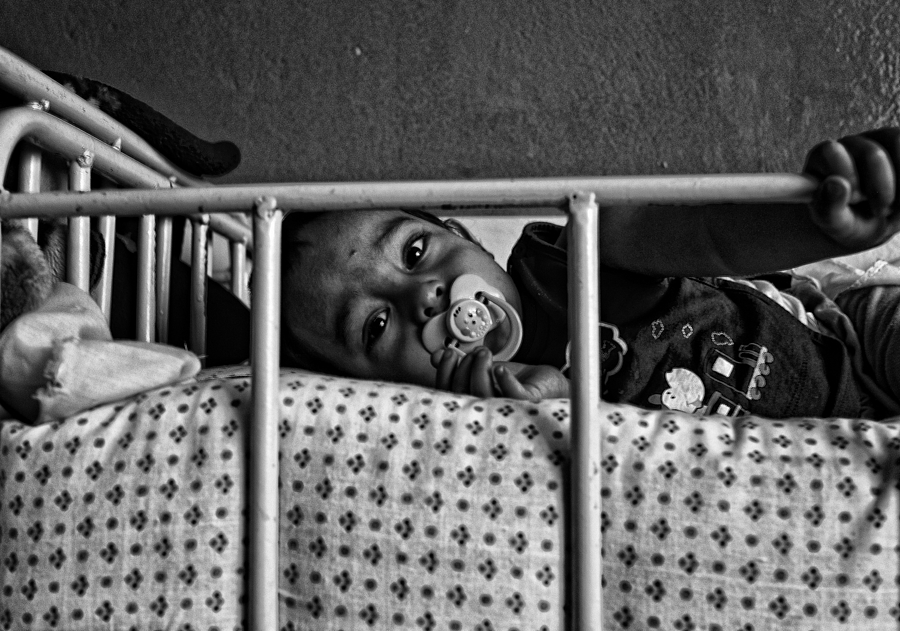 Injured child in Kabul SGAA Clinic, Afghanistan | LEICA SUMMICRON 28MM F2 ASPH <br> Click image for more details, Click <b>X</b> on top right of image to close