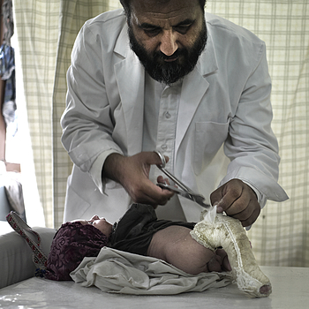 Ponseti Doctor treating a baby boy for Club Foot Jalalabad Afghanistan | LEICA SUMMICRON 28MM F2 ASPH