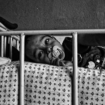 Injured child in Kabul SGAA Clinic, Afghanistan | LEICA SUMMICRON 28MM F2 ASPH